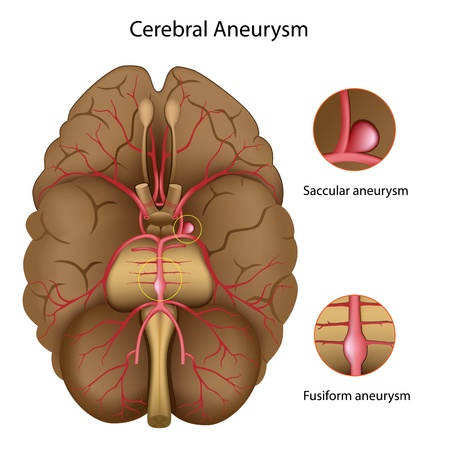 Cerebral aneurysm Stock Vector - 13404942
