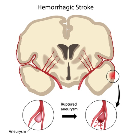 Brain hemorrhagic stroke Illustration
