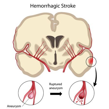 Brain hemorrhagic stroke Illustration