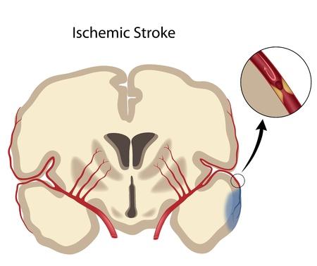 Brain ischemic stroke Illustration