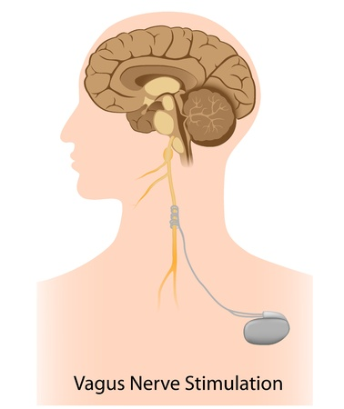 Vagus nerve stimulation therapy Illustration