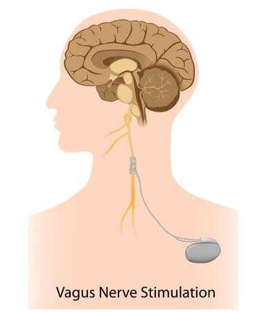 Vagusnerv-Stimulation-Therapie
