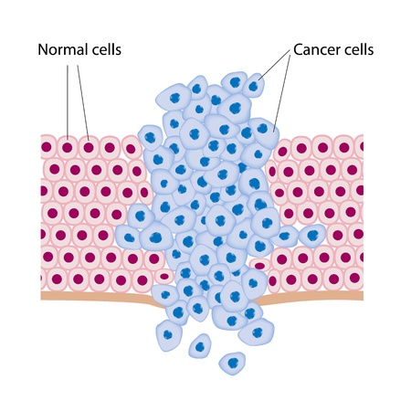 virus cell: Cancer cells in a growing tumor