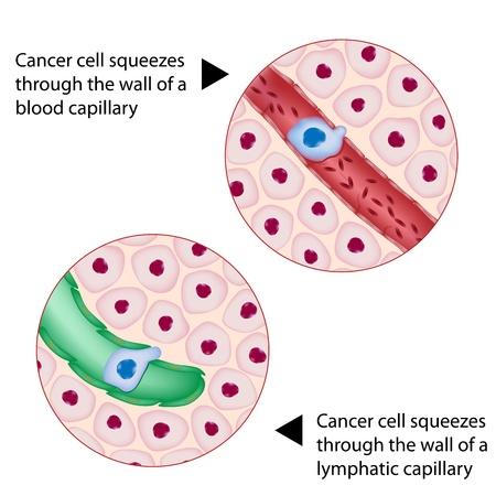 Kankercel wurmt zich door bloed en lymfe schip tijdens metastase Stock Illustratie
