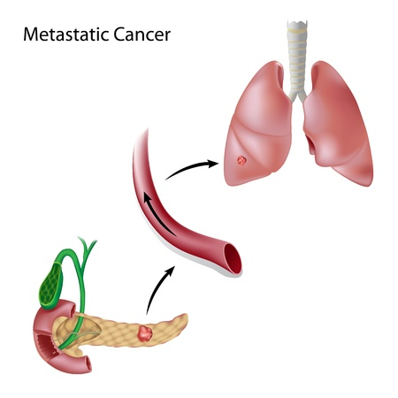 metastasis: Cancer spreads through blood circulation from the pancreas to the lungs