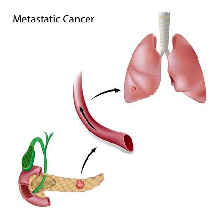 trzustka: Rak rozprzestrzenia się poprzez krążenie krwi z trzustki do płuc Ilustracja