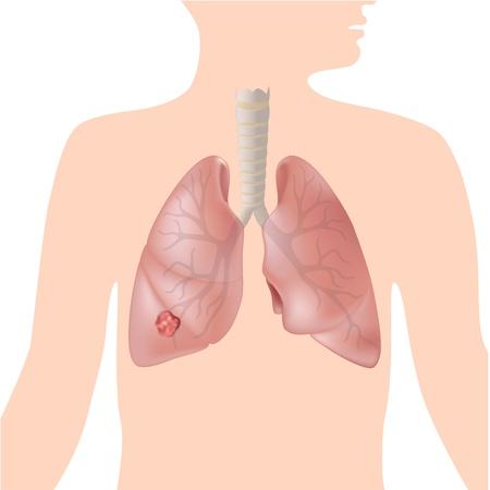 organos internos: El cáncer de pulmón Vectores