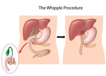 El procedimiento de Whipple para el tratamiento de cáncer de páncreas