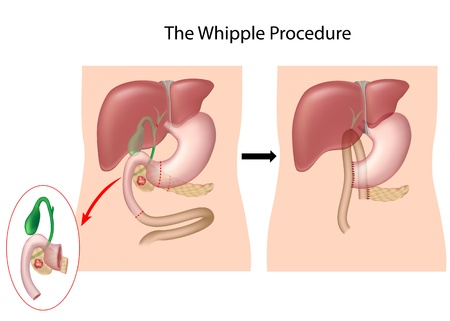 The Whipple Procedure for treatment of pancreatic cancer Stock Photo - 14597239