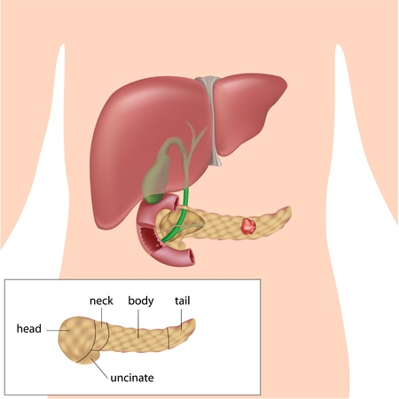 partes del cuerpo humano: Cancer pancreatico Editorial