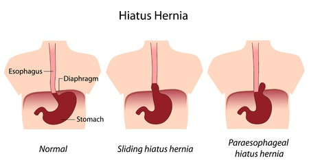 fundus of stomach: hiatus hernia