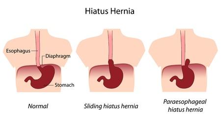 sphincter: hiatus hernia