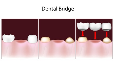 fixed: Procedimiento de puente dental Vectores