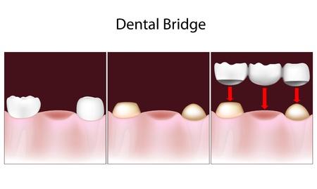clavados: Procedimiento de puente dental Vectores