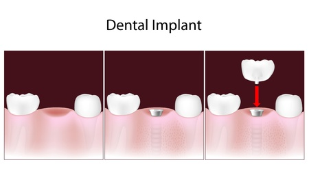 Dental implant procedure Vector