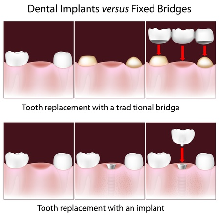 Dental implants versus fixed bridges Vector