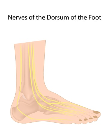 affected: Dorsal digital nerves of foot, commonly affected in diabetic neuropathy Illustration