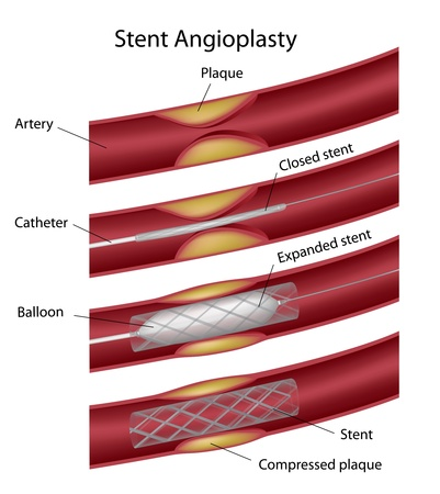 infarction: Stent angioplasty Illustration