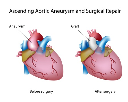 Ascending aortic aneurysm and open surgery repair Vector