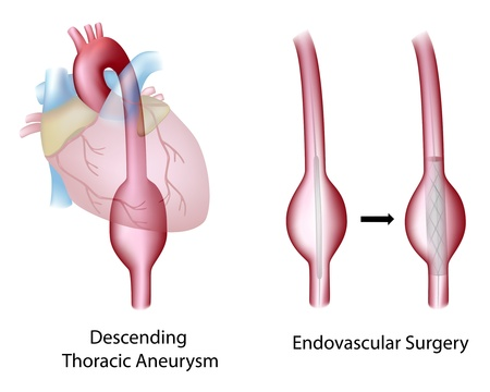 Thoracic (descending) aortic aneurysm and endovascular surgery Illustration