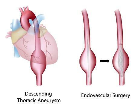 enlarged: Toracica (discendente) aneurisma aortico e chirurgia endovascolare Vettoriali