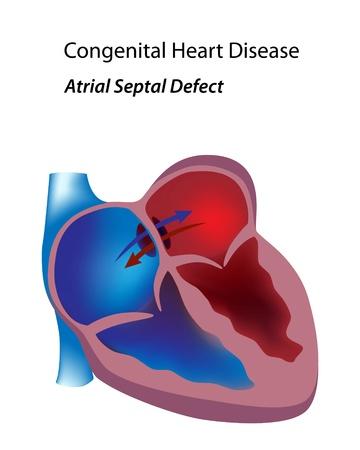 Herzkrankheit: Angeborene Herzfehler: Vorhofseptumdefekt Illustration