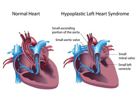 Sindrome del cuore sinistro ipoplasico Archivio Fotografico - 15357010
