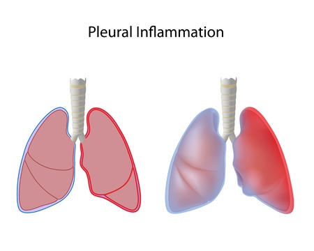 Inflammation of pleura, pleurisy Vector