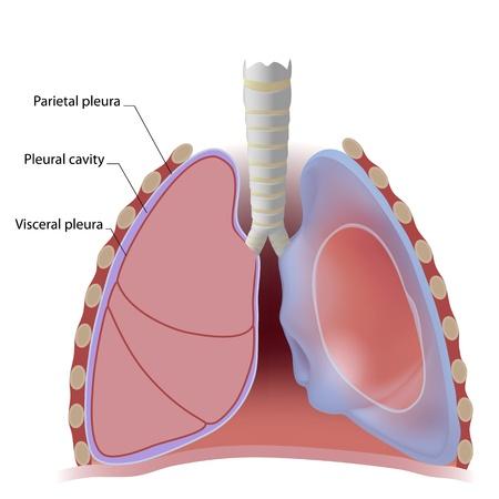 klatki piersiowej: Lung opłucnej i jamy opłucnej Ilustracja