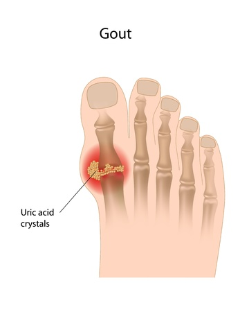 fluids: Gout of the big toe
