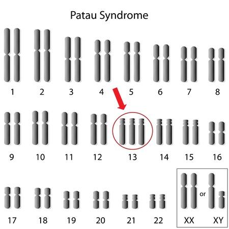 Patau syndroom, trisomie 13