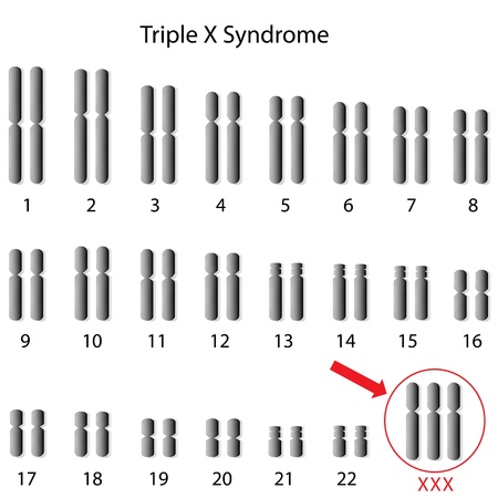 Triple X syndrome Stock Vector - 15618034
