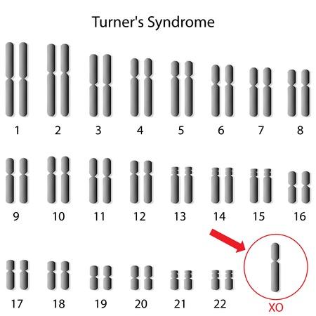 Monosomy X, Turner Syndrome Ilustração