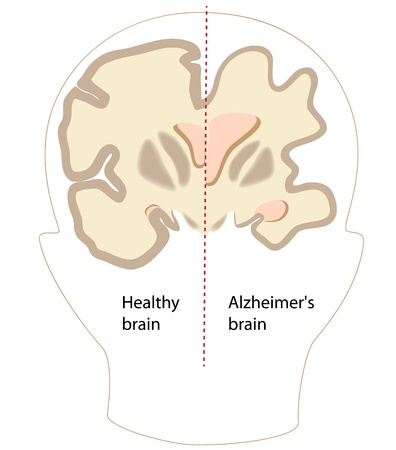 Alzheimer disease brain compared to normal
