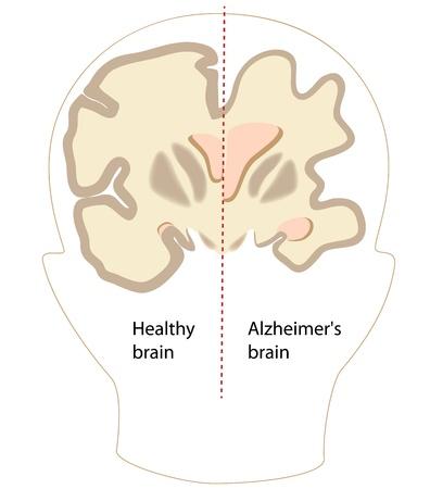 Alzheimer disease brain compared to normal