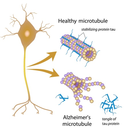 Disintegrating microtubules in Alzheimer disease