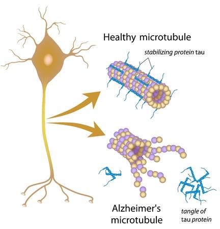 Desintegrerende microtubuli in de ziekte van Alzheimer