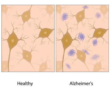 memory loss: Alzheimer disease brain tissue with amyloid plaque