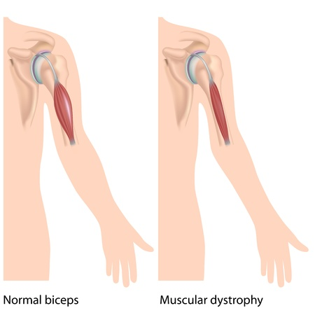 Muscular dystrophy Illustration