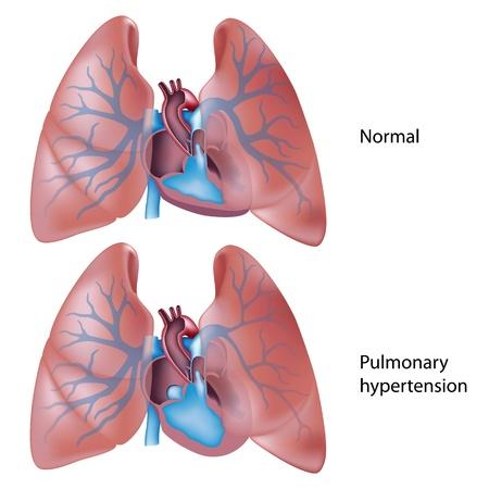 hipertension: La hipertensión pulmonar Vectores