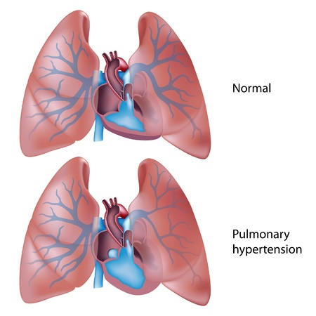 Pulmonary hypertension Vector