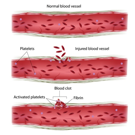 hemorragia: Proceso de coagulaci�n de la sangre