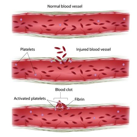 piastrine: Processo di coagulazione del sangue