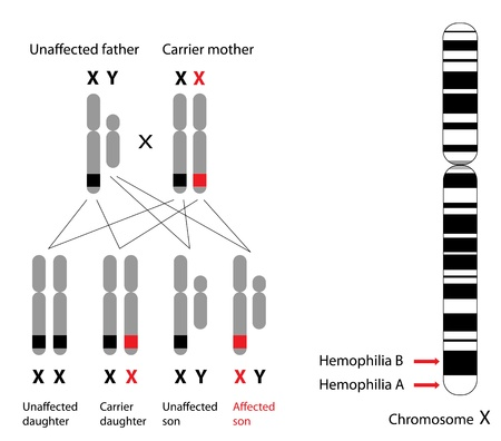 Genetics of hemophilia, A and B Illustration