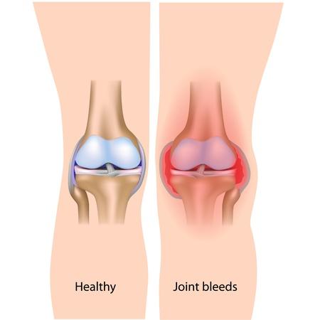 Joint bleeds in hemophilia Illustration