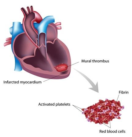 piastrine: Trombo murale dopo l'attacco di cuore