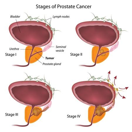 전립선 암의 단계 일러스트