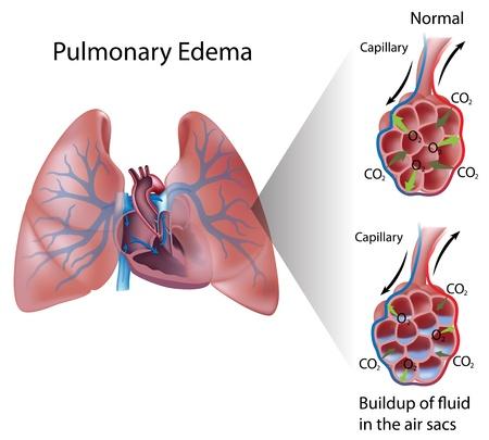 Lungenödem Vektorgrafik