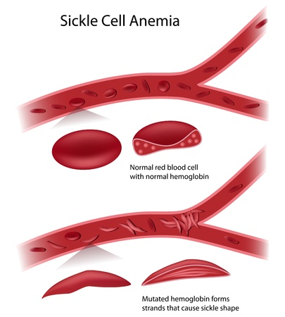 abnormal cells: Sickle cell disease