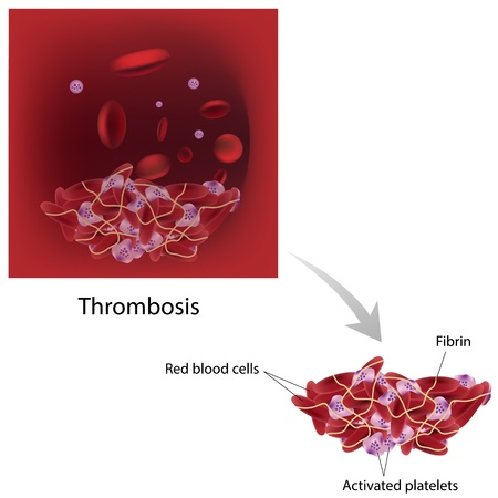 Thrombose Standard-Bild - 16189454